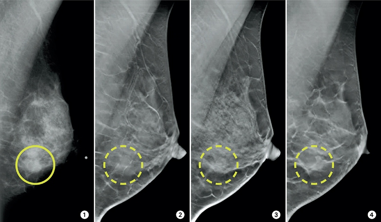 تفسیر جواب ماموگرافی