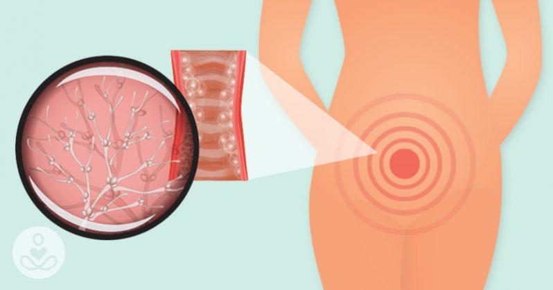 علت عفونت واژن