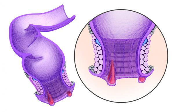 درمان خانگی سوزش مقعدی بعد از مدفوع