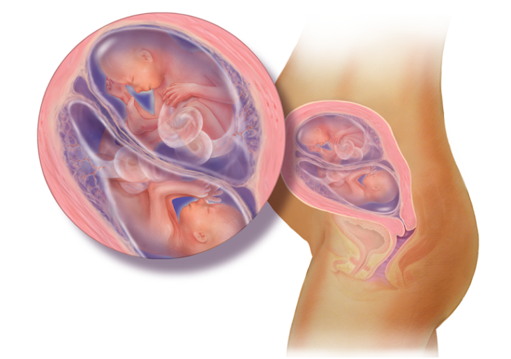 هفته بیستم بارداری دوقلویی