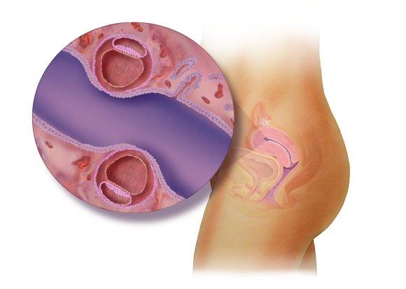 هفته سوم بارداری دوقلویی