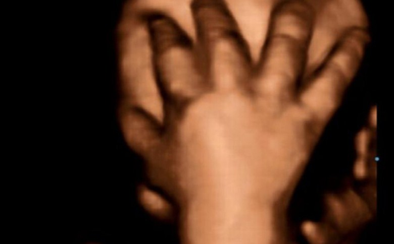 سونوگرافی جنین در هفته چهلم بارداری