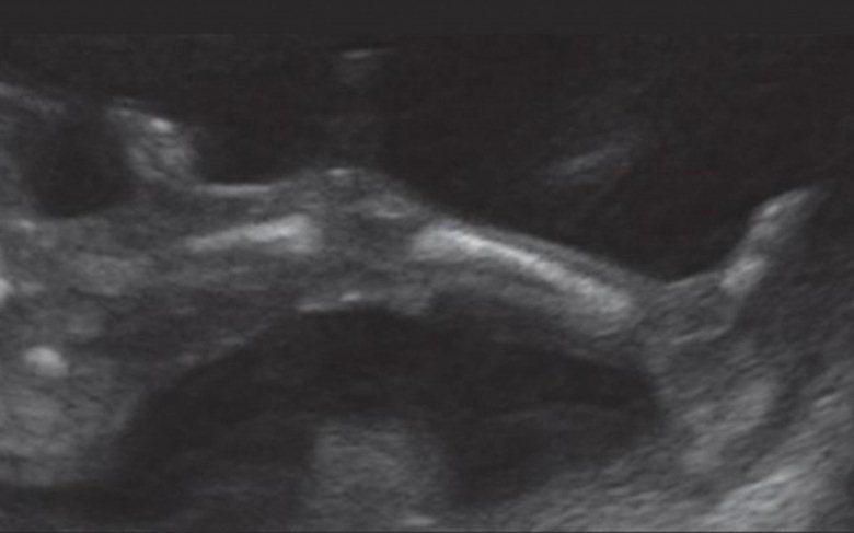 سونوگرافی هفته پانزدهم بارداری