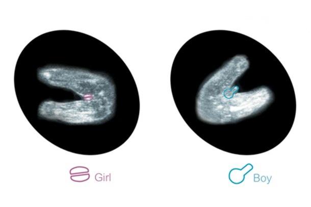 تشکیل اندام تناسلی جنین پسر