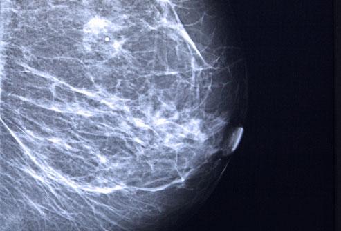 غدد انفاوی در سرطان سینه