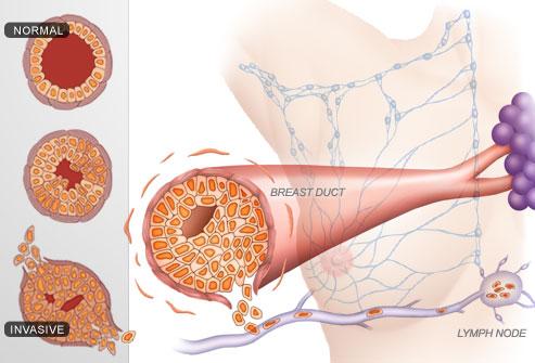 طبقه بندی انواع سرطان پستان