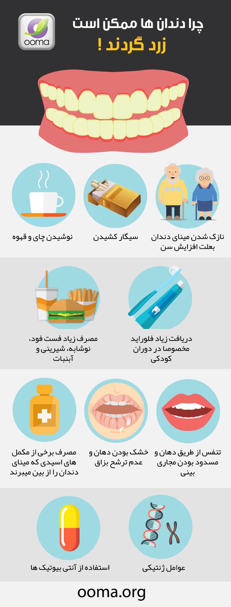 علت زرد شدن دندان ها