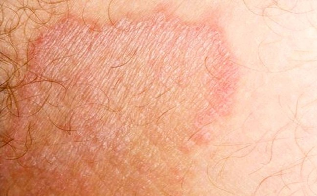 علت قارچ پوستی کشاله ران