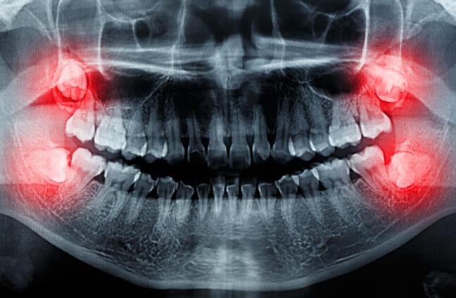 علت کشیدن دندان عقل
