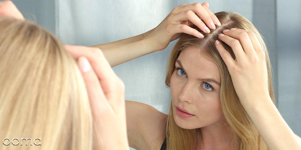درمان ریزش شدید مو بعد از زایمان