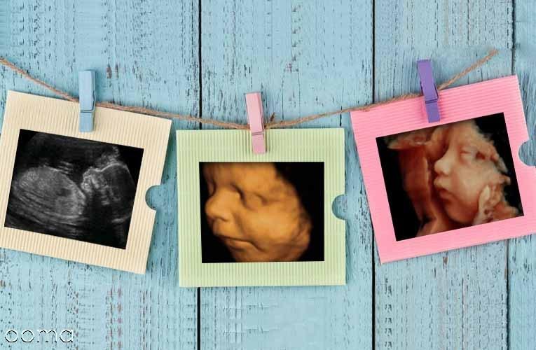 8 سوال رایج در سونوگرافی حاملگی