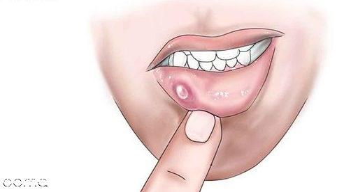 14 درمان خانگی آفت دهان به روش ساده