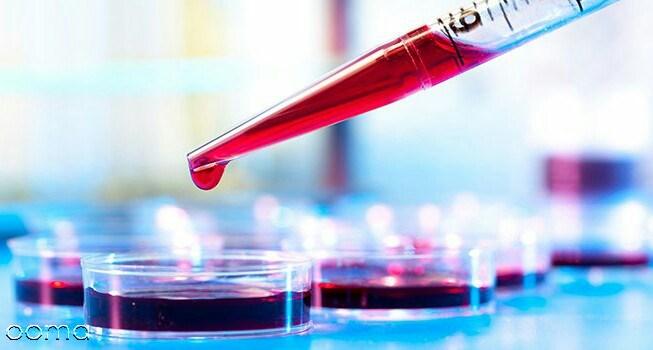 آزمایش پرولاکتین چیست؟