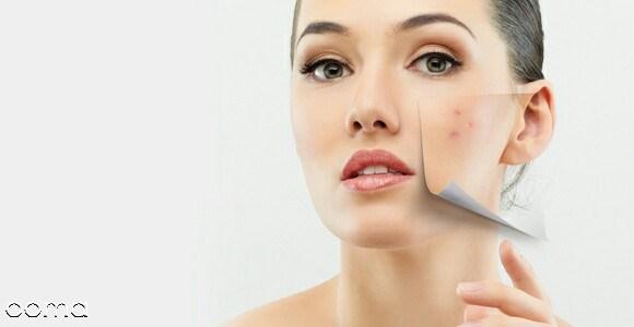 درمان خانگی دانه های سیاه پوست صورت