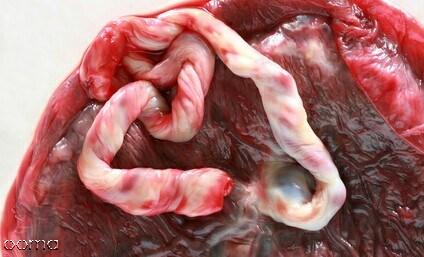 خون بند ناف چیست؟