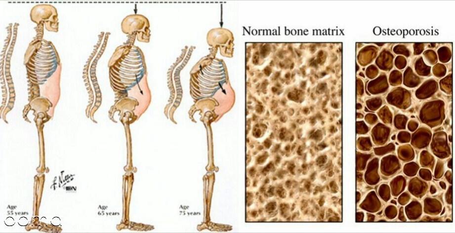 برای درمان پوکی استخوان چه باید کرد - سلامت بانوان اومابرای درمان پوکی استخوان چه باید کرد