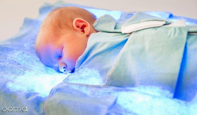 زردی  نوزاد چیست؟