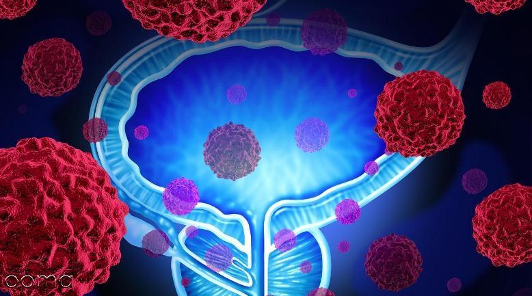 آیا سرطان پروستات درمان دارد؟