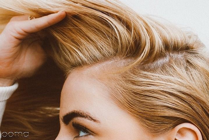 5 علت و 12 درمان  نازک شدن مو