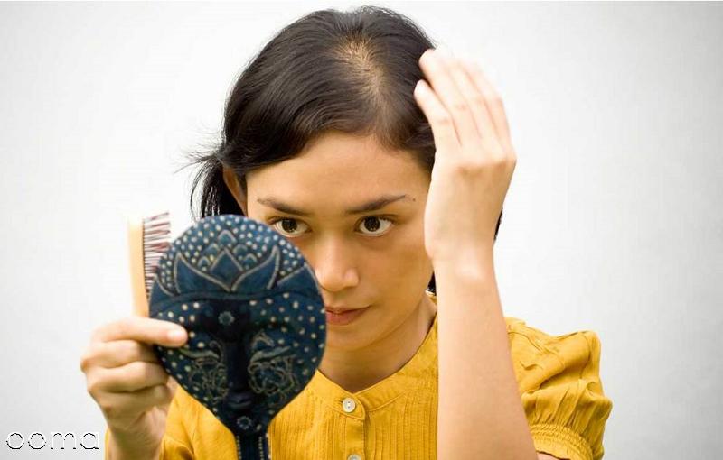 چگونه ریزش مو را درمان کنم؟