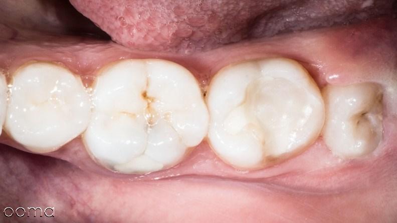 مراقبت های قبل و بعد از کشیدن دندان عقل
