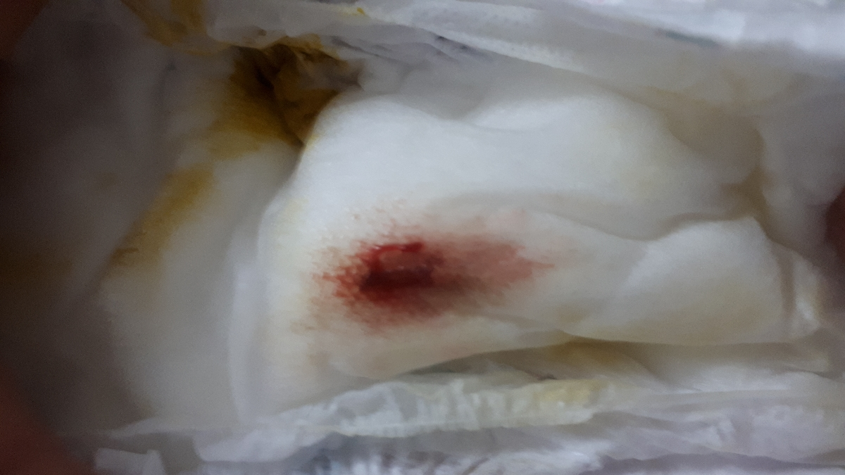 لکه خون در پوشک نوزاد دختر۶ روزه